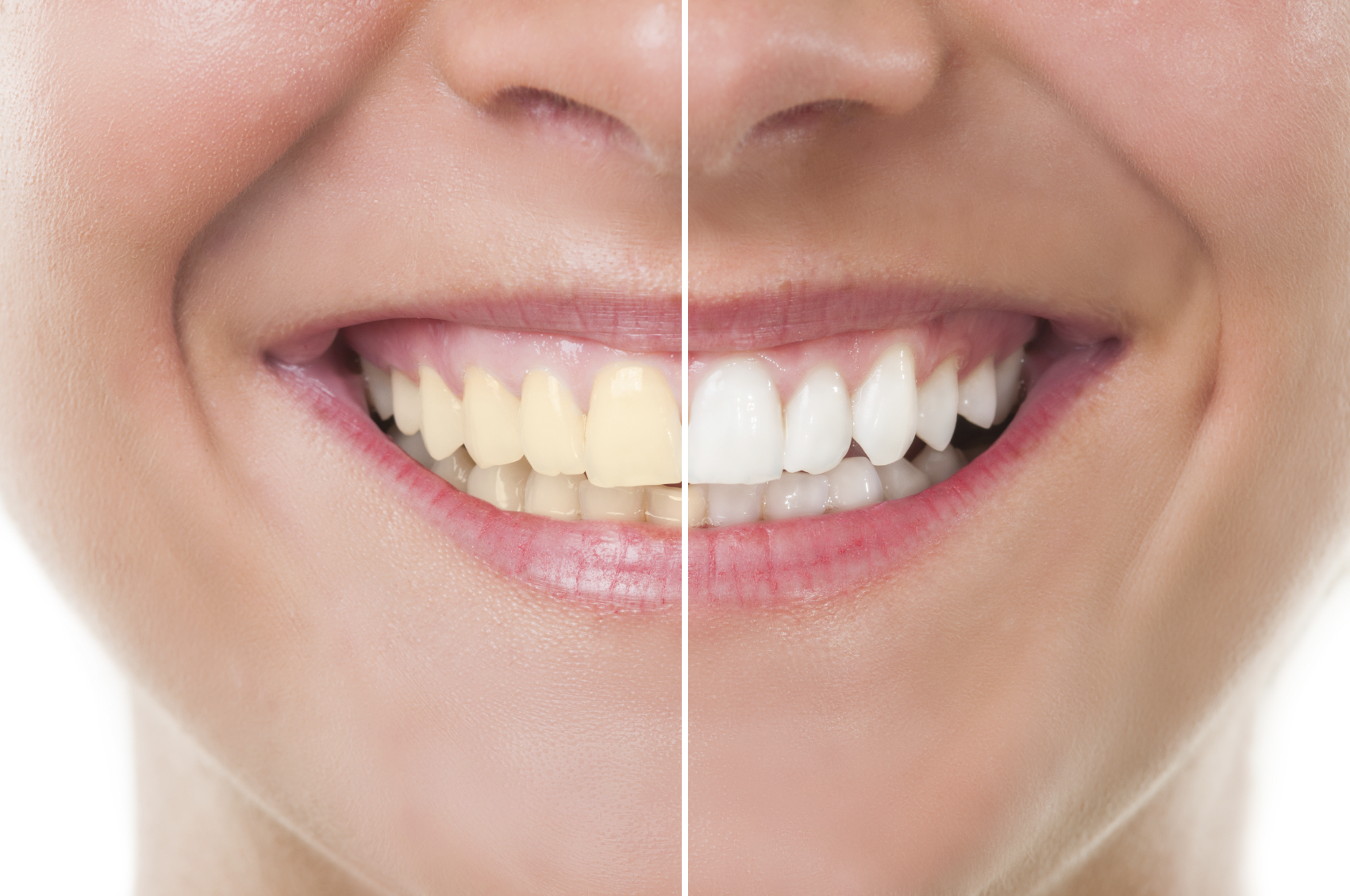 The Real Scoop on Whitening Your Teeth