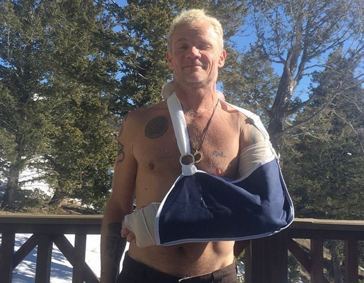 Flea Breaks Arm. Delays Red Hot Chili Peppers' Recording Plans.