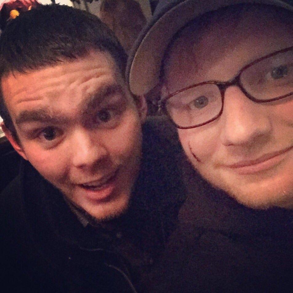 Sheeran's Scar, Adele @ShortBuzzz