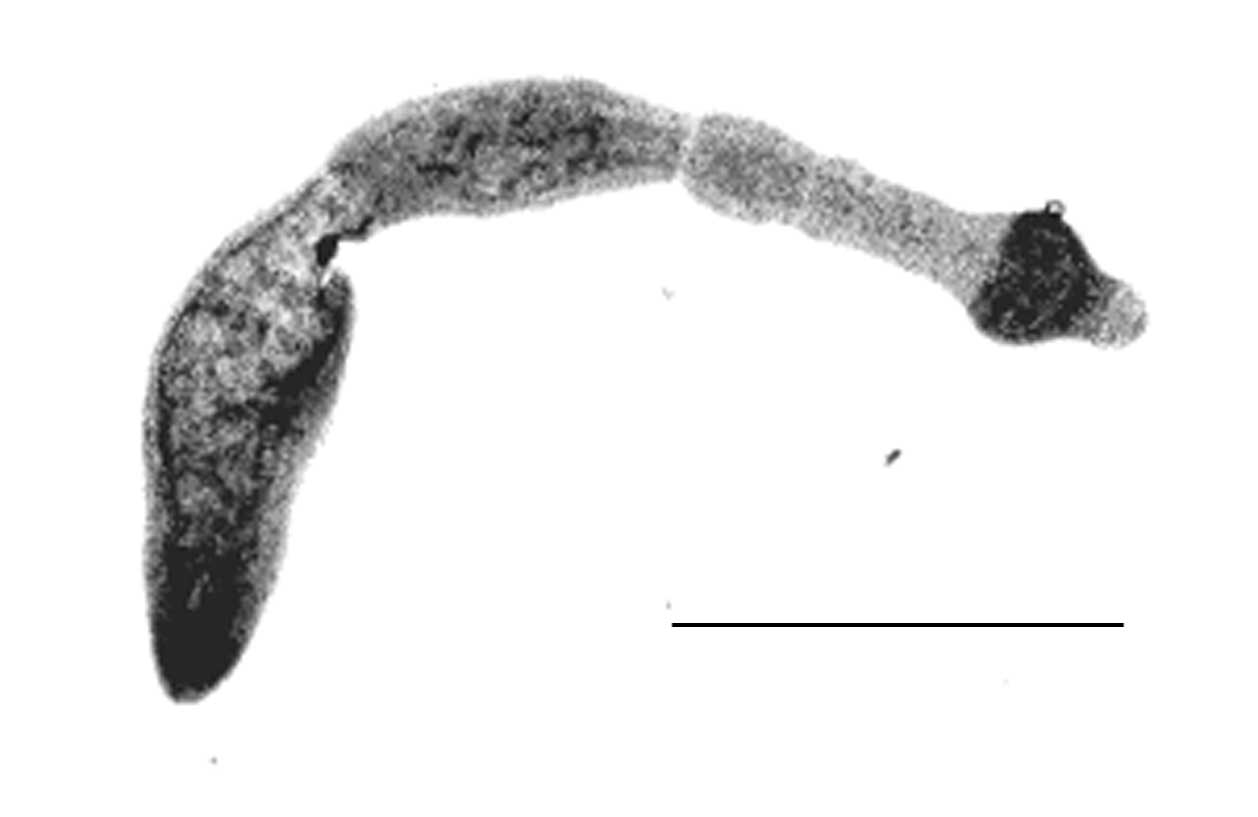 Fox Tapeworm Detected in Saskatchewan