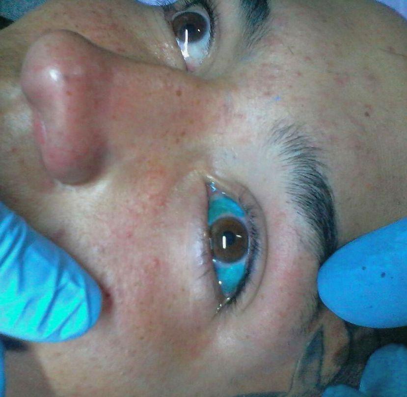 Ontario banning eye tattoos and implanting eye jewellery