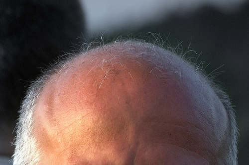 A New Study Finds Short Guys Are More Likely to go Prematurely Bald