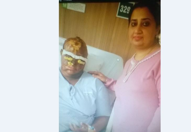 STEADY PROGRESS: Second Phase Of Acid Victim's Surgery Successful
