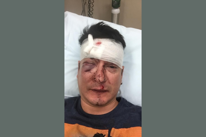 Beaten, but not defeated: Gay Saskatoon man posts photos of brutal bar attack