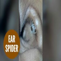 Spider extracted from woman's ear