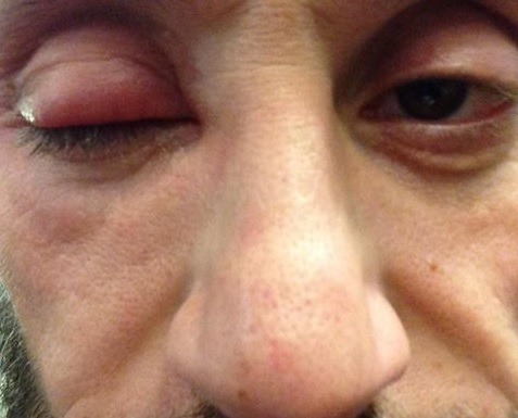 LISTEN:I wrote a song about my cellulitis and my swollen eye while in the ER!
