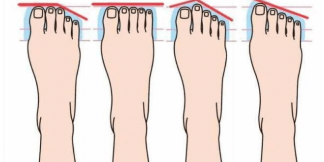 the-shape-of-your-foot-reveals-what-kind-of-a-person-you-are