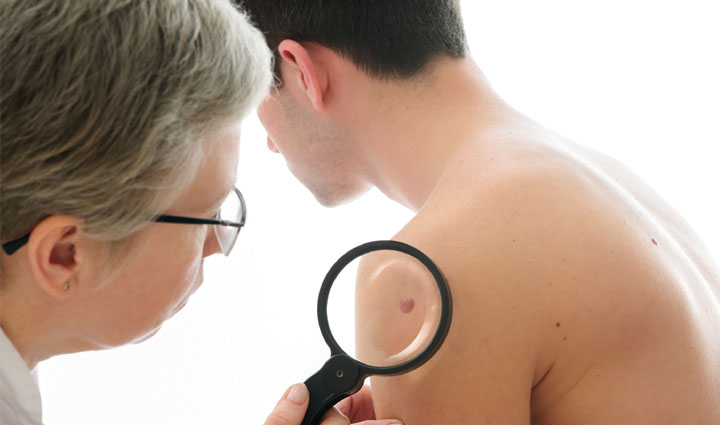 Prevén el melanoma, es el cáncer de piel más peligroso
